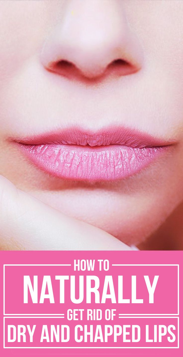 How To Naturally Get Rid Of Dry And Chapped Lips Chapped Lips