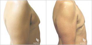 Liposuction for Men - Chest | Sono Bello Total Body Transformation Centers | Image source: Sono Bello website