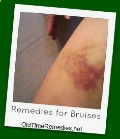 Bruise Remedies - OldTimeRemedies