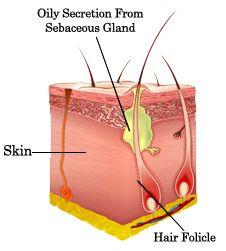 jojoba oil and acne