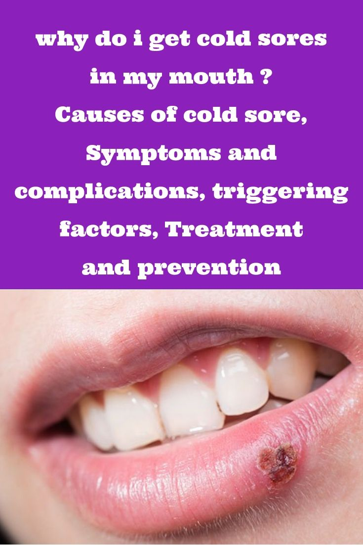 why do i get cold sores in my mouth ? Causes of cold sore
