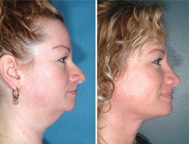 WOW!!!  Nose Job,  Neck Liposuction   Neck Lift,  Upper Eyelid Lift