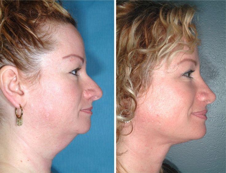 WOW!!!  Nose Job,  Neck Liposuction   Neck Lift,  Upper Eyelid Lift