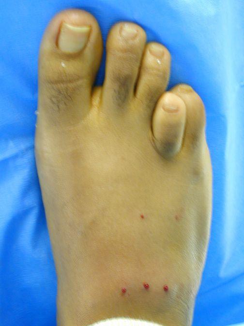 150 best Ingrown toenails home remedies images on Pinterest | Home ...