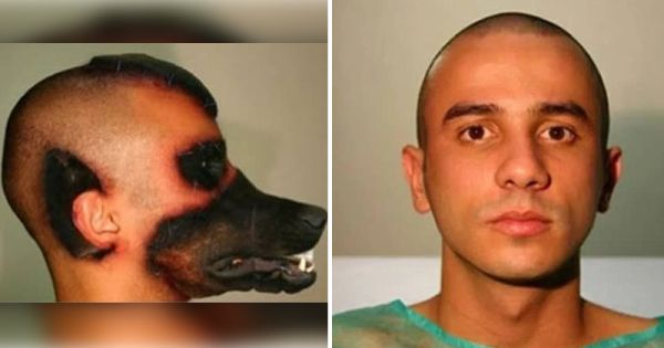 Extreme Surgeries That Crazy People Paid Huge Cash For