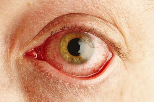 Pink Eye, Conjunctivitis Symptoms and Causes