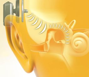 How the fully magnetic, abutment-free Baha Attract System works: Sound is transmitted as vibrations from the sound processor via the magnets to the implant, which directs them through the bone to stimulate the inner ear. #BahaAttract #hearingloss #hearinglosstreatment #Cochlear #boneconduction #magnetichearingaid #cool #technology