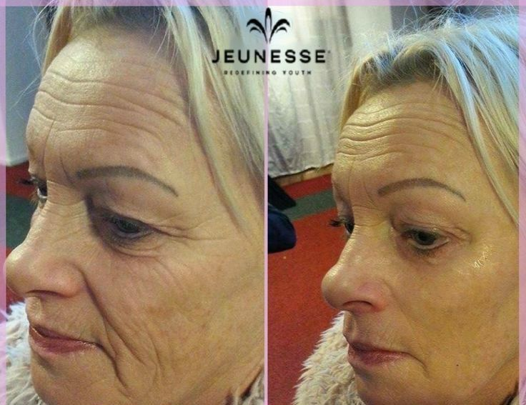 The reviews are off the charts!  Look 10 years younger in less than 2 minutes with Instantly Ageless by Jeunesse!  This fast acting microcream loaded with the powerful peptide Argireline, literally begins working before your very eyes!!!
