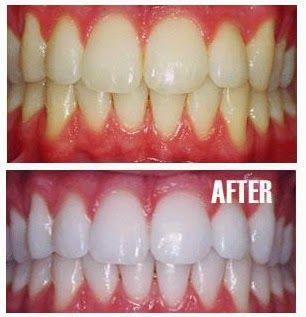 Utilizzare basilico in vari modi e dire addio al giallo denti