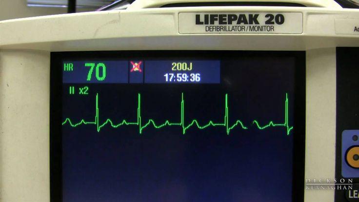 EKG Training: Watching and Interpreting the Defibrillator Monitor (+play...