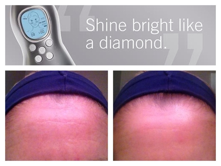 WOW...this MACRO E continues to AMAZE me!! Isn't fellow consultant, Sherrie Norris Thompson's results Ah-MAZE-ing?!?! Don't you want to obtain proven results in the convenience of your own home vs paying out the WAAA ZOO at the dermatologist?!?! Treatments in derm offices will run you $180 per visit!!!