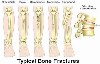 "Fractures occur as a result of traumas caused by falls, car accidents, or injuries from playing sports. Sometimes fractures may be a result of diseases such as osteoporosis, a condition characterized by ""porous"" bones, osteogenesis imperfecta, and some types of cancer. Overuse may also lead to stress fractures, which are manifested by miniature cracks appearing on the surface of the bone. #fractures #bonefractures #bonediseases #medicalook"