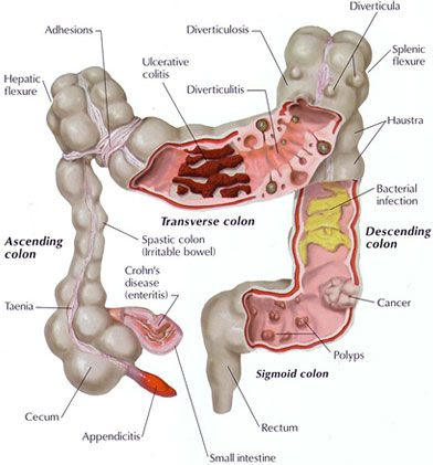 This is not the colon you would want. It highlights many diseases of the colon from polyps, ulcerative colitis, diverticulitis, cancers etc. Look after your bowel.  It's so important, not just for the health of the digestive system, but for the whole body.