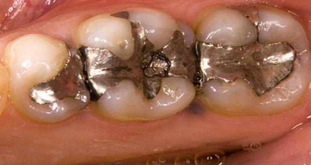 Les dentistes utilisent des amalgames pour fermer les cavités dues aux caries. Toutefois, l'amalgame est un matériau dont ... >>