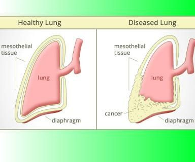 An Overview Of Mesothelioma Cancers<p>What are Mesothelioma Cancers?<p>Mesothelioma cancers are the cancers that spread in the mesothelium tissues. Mesothelium in general is the name of tissue that forms lining of different body organs such as heart, lungs, abdomen and reproductive organs. The lining around abdominal organs is known as peritoneal membrane. Lining around lungs is called pleural membrane while the lining around heart is called pericardium.<p>These linings perform two…