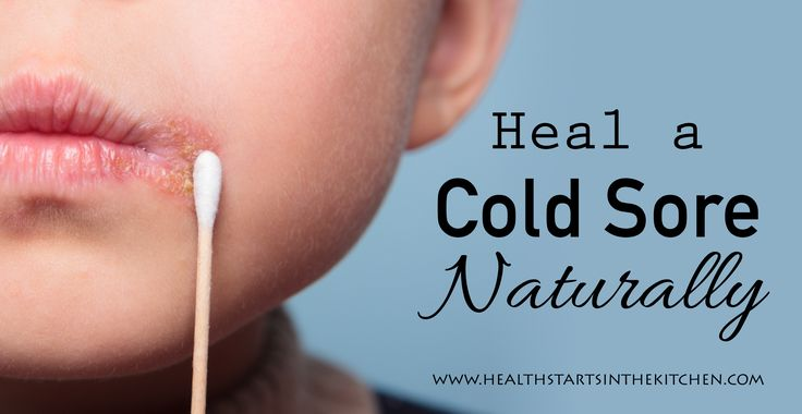 How to Heal a Cold Sore Naturally - Health Starts in the Kitchen