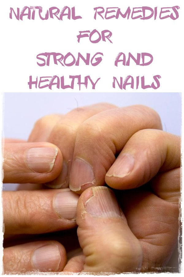Here there are my natural remedies for the most common nail problems. They will help you have the healthy nails you wanted. You just need to be consistent.