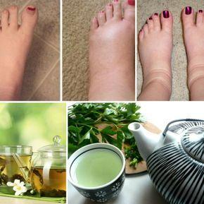 Ai picioarele umflate? Poţi să îţi rezolvi problema cu un simplu ceai foarte eficient