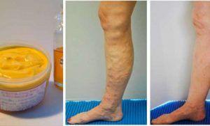 Por fin revelado, el tratamiento natural mas eficaz contra la vena varicosa!!