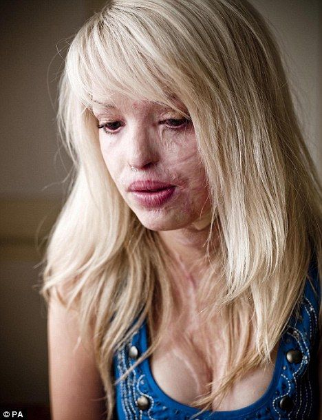 Katie Piper; if you don't know her story, look it up. She's an inspiration and has lived with 2 very different skins