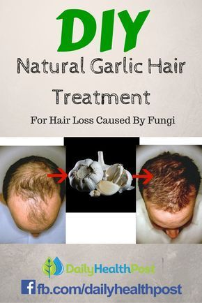 Anyone can suffer from hair loss issues. In some cases, it is a sign of aging, but men and women lose hair for many other reasons as well. A great deal of natural treatments are focused on using rosemary infused oils, pumpkin seed oil or the addition of rosemary to shampoos and conditioners. But Garlic can also be an effective alternative to promote new hair growth for women and men.Here's Why Garlic May Be the Best Natural Treatment Against Hair Loss Caused By Fungi