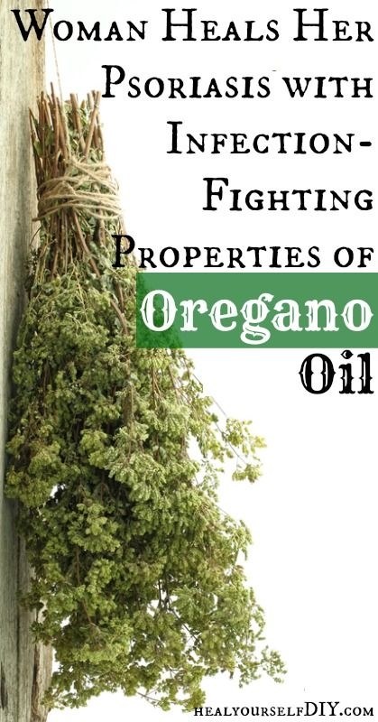 Woman Heals Psoriasis with Oregano Oil | www.healyourselfDIY.com