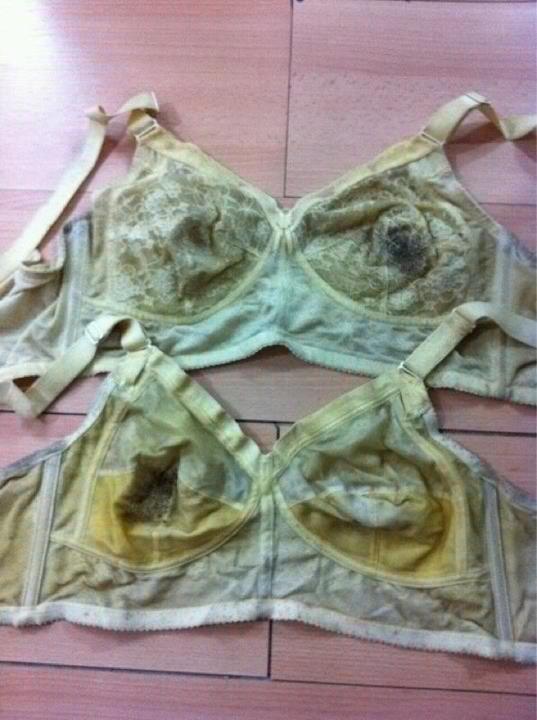 这是一位20岁女生,穿第一件一个多月,第二件也是一样,在排毒。穿不到三个月就这样了, 她的身体在找寻什么问题呢?