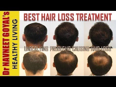 The Science & Treatment of Hair Loss  Hair Fall / Baldness Cure | Why do Men grow bald?