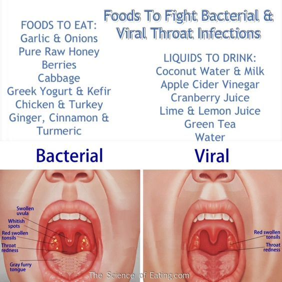 Foods That Fight Viral & Bacterial Throat Infections: