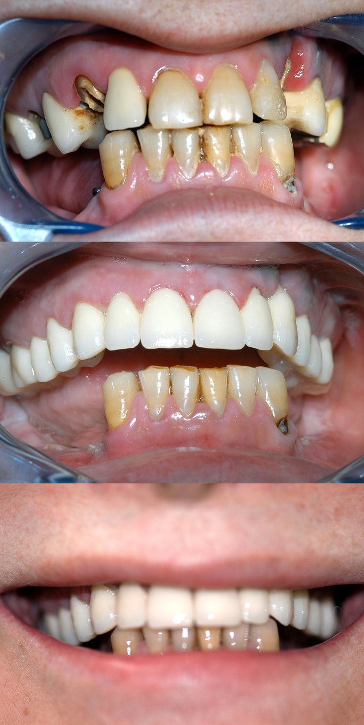 Case of upper teeth reconstruction with three dental implants and 12 teeth circular bridge    Caso di ricostruzione dei denti superiori con tre impianti dentali e un ponte circolare di 12 denti.