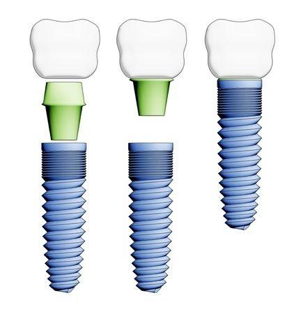 Prótesis dental flexible que causa lesiones en encias , lengua , etc.. reemplazo por Implantes Dentales