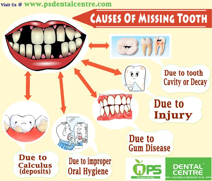 Causes Of Missing Tooth Contact Us :- http://www.psdentalcentre.com/dental-centre/best-dental-hospital-in-chennai