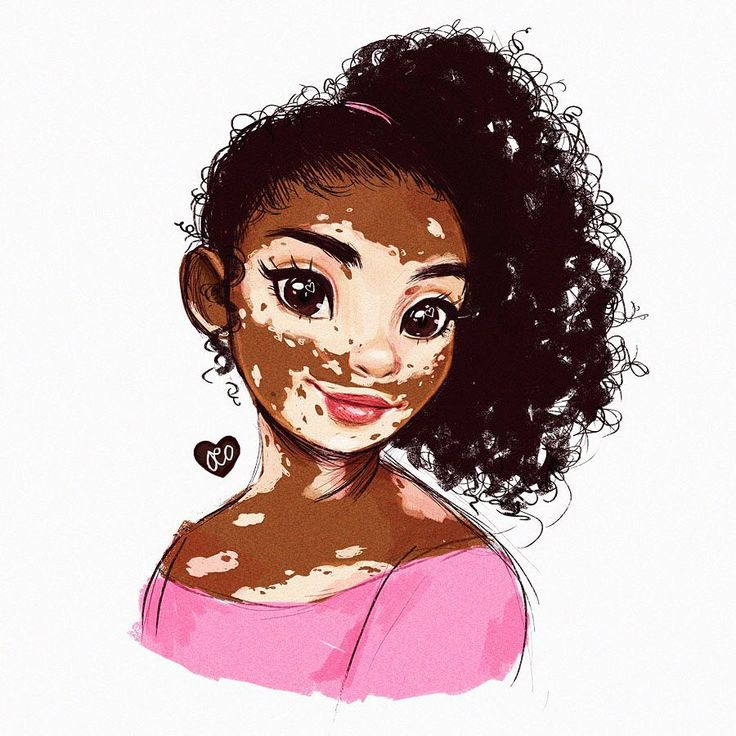 duchess365: Day 189/365 Vitiligo is beautiful -- literally one of my OCs