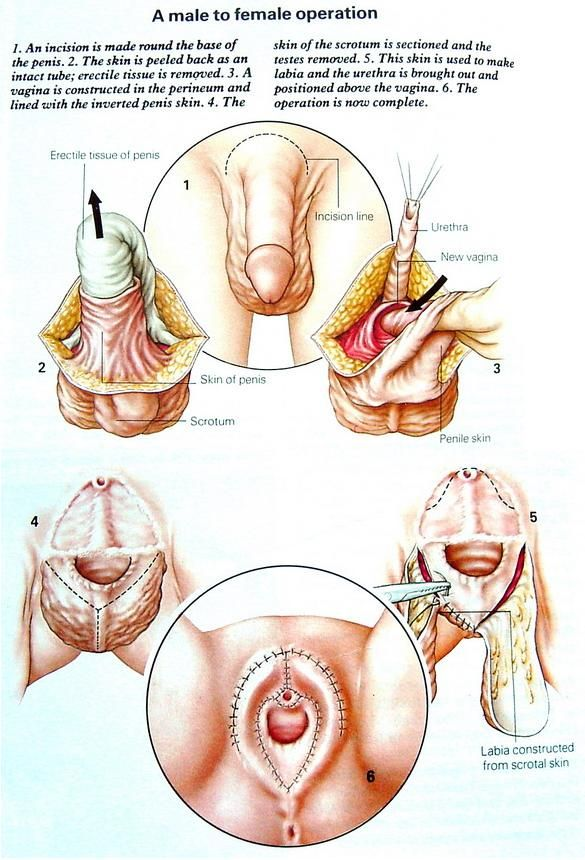 Male female sex organs-8962