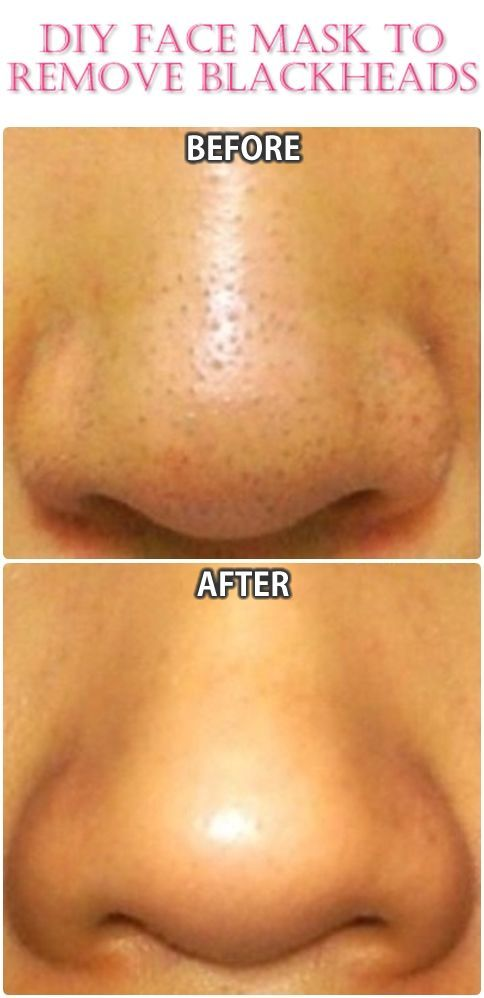 how to clear up blackheads on face