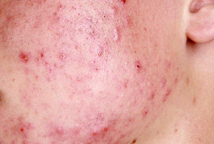 Acne rosacea: cause e rimedi naturali >>> http://www.piuvivi.com/bellezza/acne-rosacea-cause-cure-trattamenti-naturali.html <<<