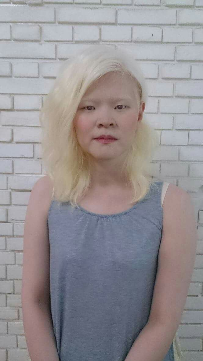 albino asian woman