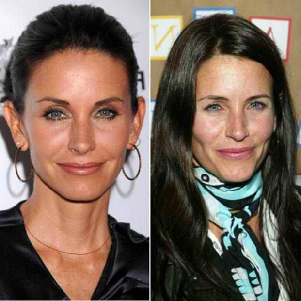 Courtney Cox Plastic Surgery Before After