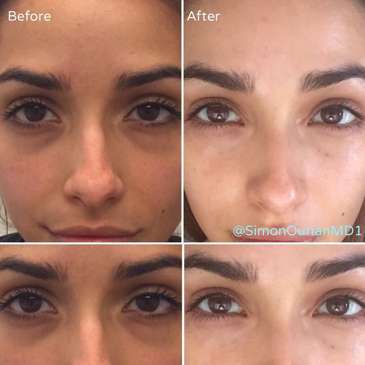 Removal of Dark Circles Under Eyes using Coolaser  Thank you @michelematuro for allowing us to film and show the before and after Treatment: Under Eyes Dark Circles Removal Purpose: To remove dark circles under the eyes How it works: Using Coolaser Results: Semi-Permanent (can last several years) ✏ Note: Individual results may vary Phone:310-746-5233  Email:info@epione.com  Website:www.epionebh.com Location: Epione Beverly Hills Technique: Using Coolaser  Anesth...