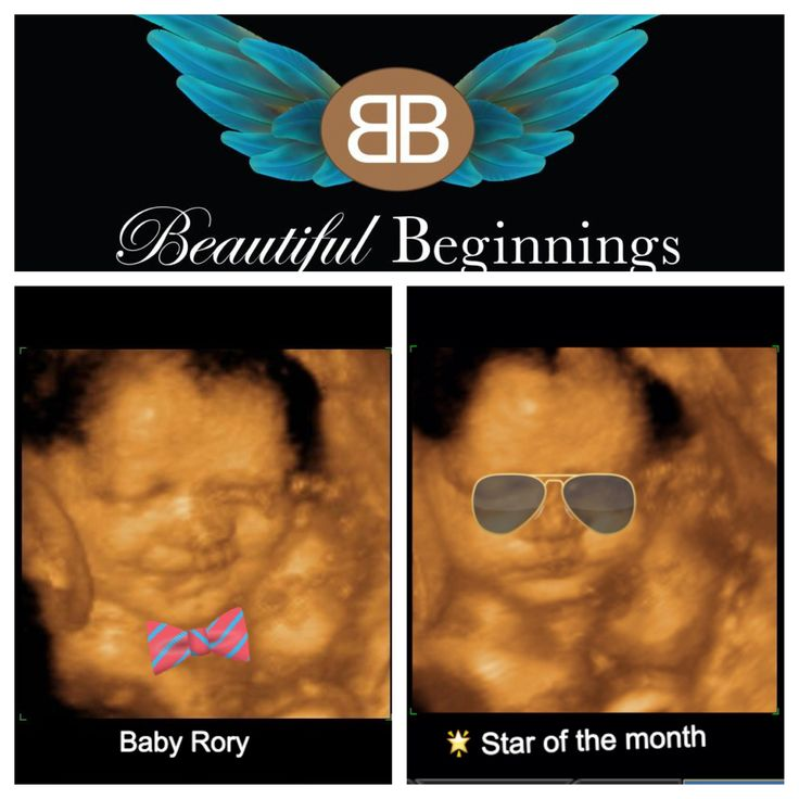 Www.beautifulbeginnings3d.com Book your 3d ultrasound with us ! Share the joy of sneaking a peek at your little angel ! * ask about new feature to share the video on fb 20 min after your session * #2dimage #ultrasound #3dimage #4dimage #beautiful #scarsdale #westchester #yonkers #newyork #prego #pregnancy #baby #smile #babylaughs #happyboy #boy #instadaily #igdaily #bronx #manhattan #maternity #queens #longisland #motherhoodcenter #family #sweet #precious #funny #lmao