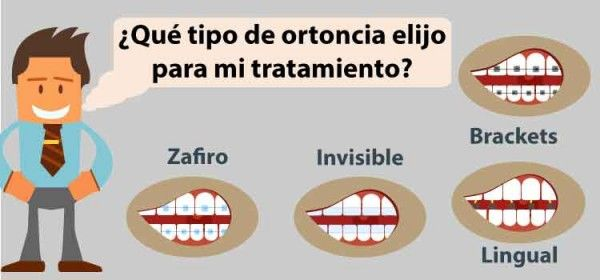 Tipos de ortodoncia ¿Cuál conviene más?