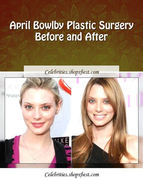 April Bowlby Plastic Surgery Before And After April Bowlby Plastic Surgery Celebrity Surgery