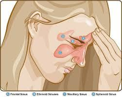 Sinusitis   What is sinusitis and how does it affect a person?  Today we through this article from the site of my health we will give you information about this annoying disease. Symptoms of sinusitis Symptoms of sinusitis Sinus secretion of yellow or green substance or sensation in the back of the throat. Nose obstruction or congestion is a symptom of sinusitis which makes breathing through the nose difficult. The patient feels pain and swelling in the vicinity of the eyes cheeks nose or…