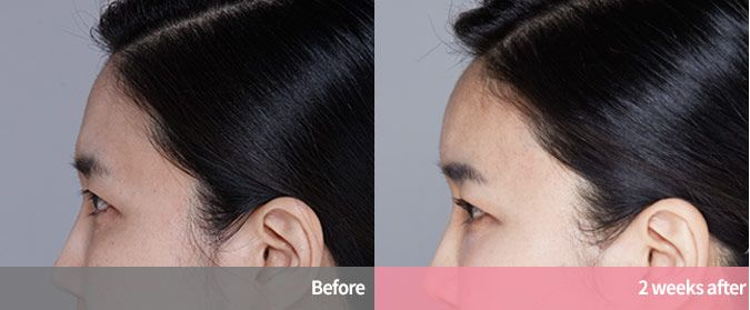 Q.O.FiLL PLUS, Full face filler that can plus natural volume longer