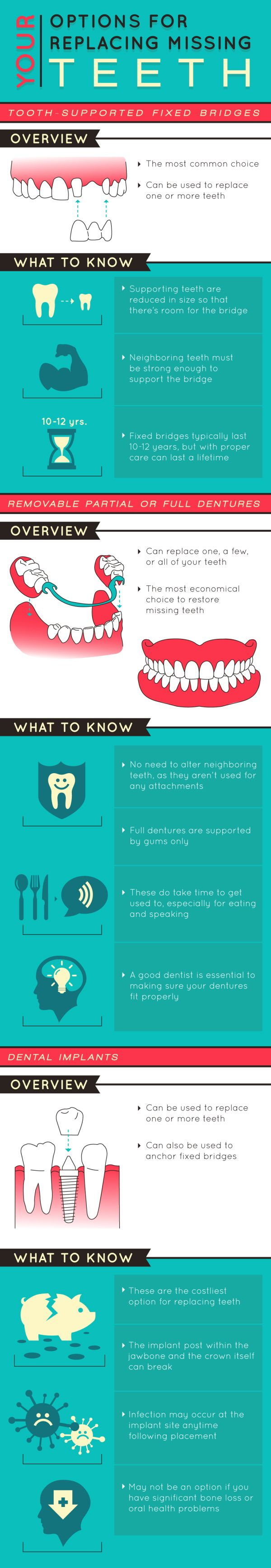 Your Options for Replacing Missing Teeth Dental