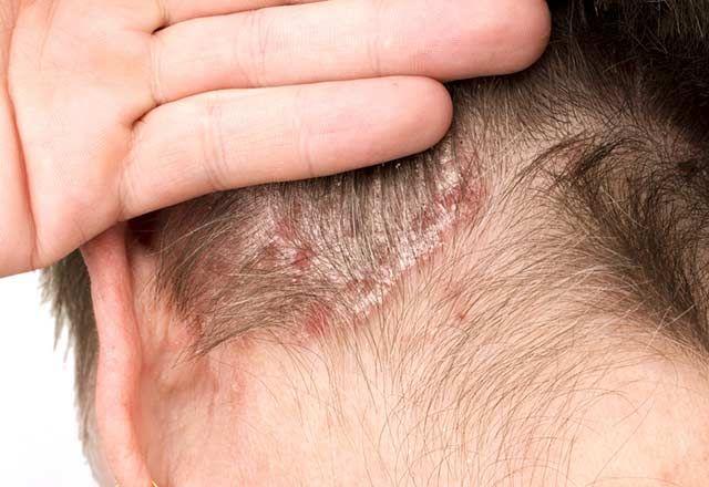 Saç derisinde kabuklanma neden olur?