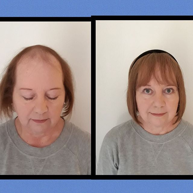 5×6 silk base topper. Perfect amount of coverage with a nice bang/fringe. Very natural. 499 Use code Andrea for 20% off Today www.perfectfringe… Fr