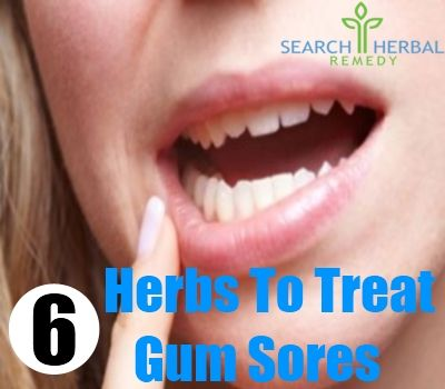6 Herbs To Treat Gum Sores