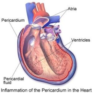 17 Best images about Pericarditis on Pinterest