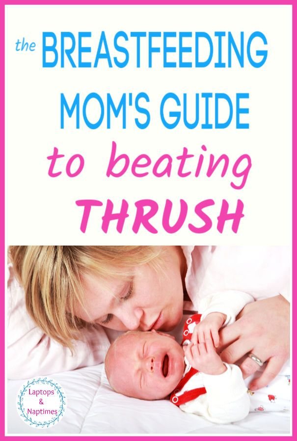 How To Spot Thrush In Breastfeeding Fix It And Prevent It From